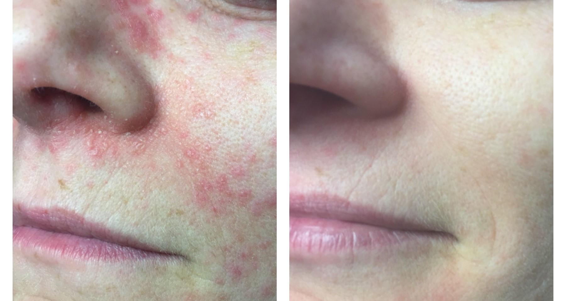 Ansigtsbehandling Perioral Dermatitis