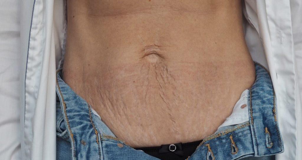 GRATIS Konsultation om slap hud på maven