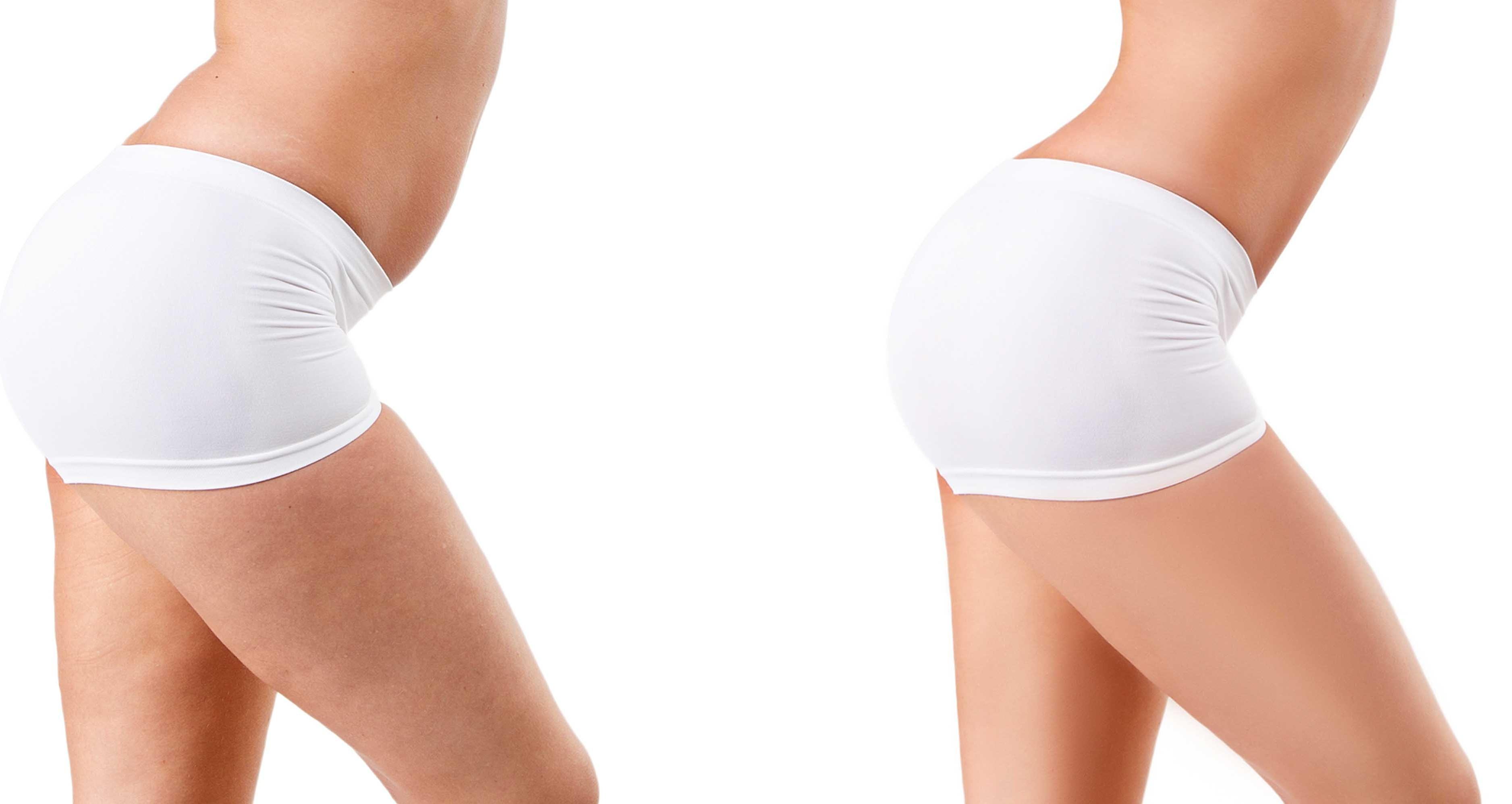 HIFU konsultation slap hud og fedt depoter krop
