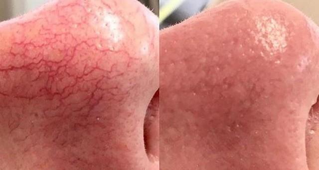 Karsprængninger - Ansigt