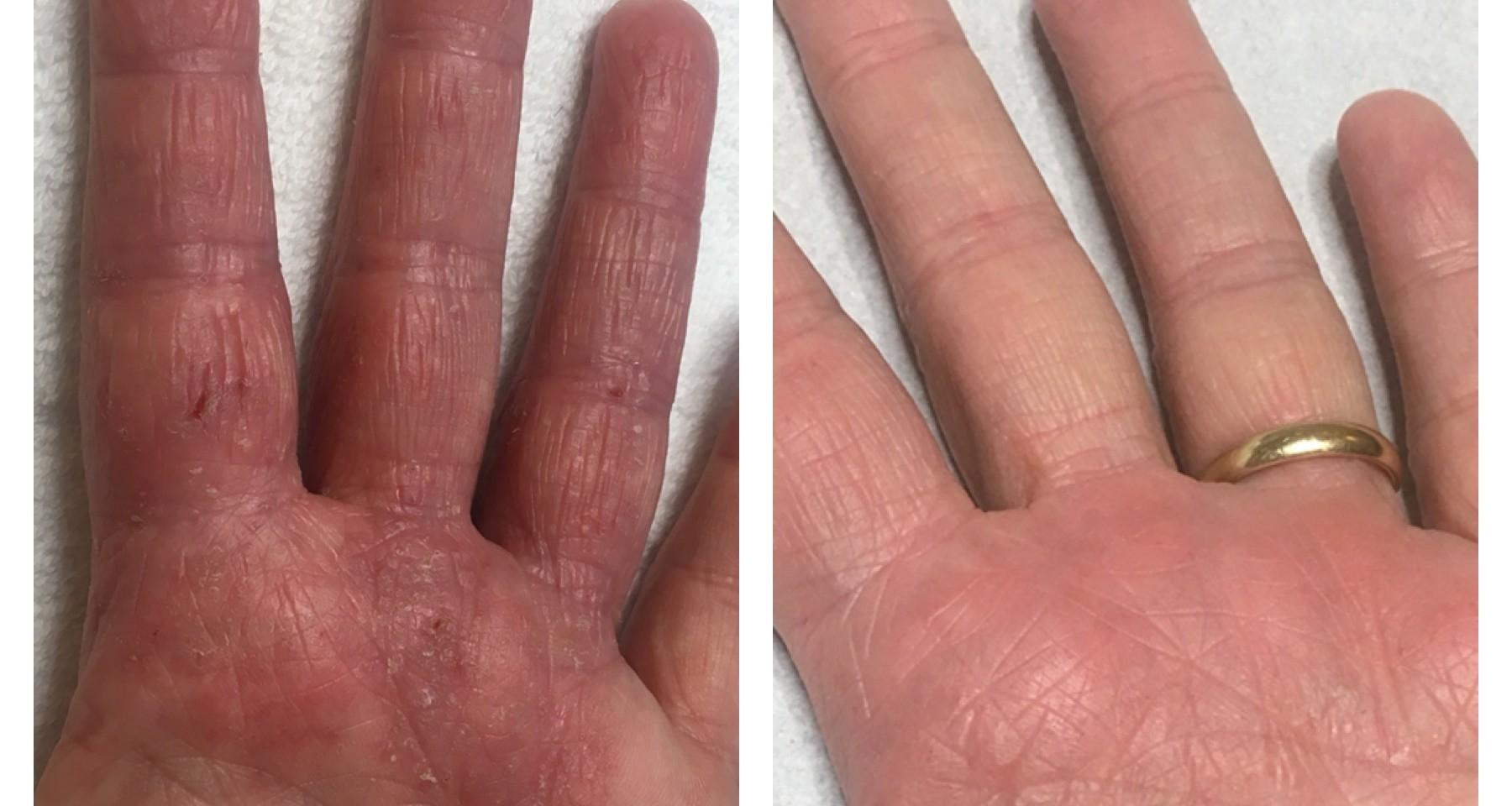 Lysterapi - Eksem - Ansigt & Krop