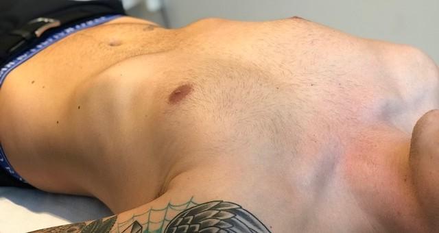 MÆND - Bryst og Mave - Voksbehandling