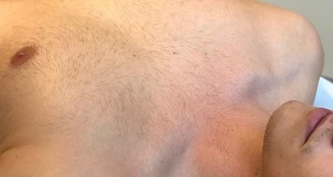 MÆND - Bryst - Voksbehandling