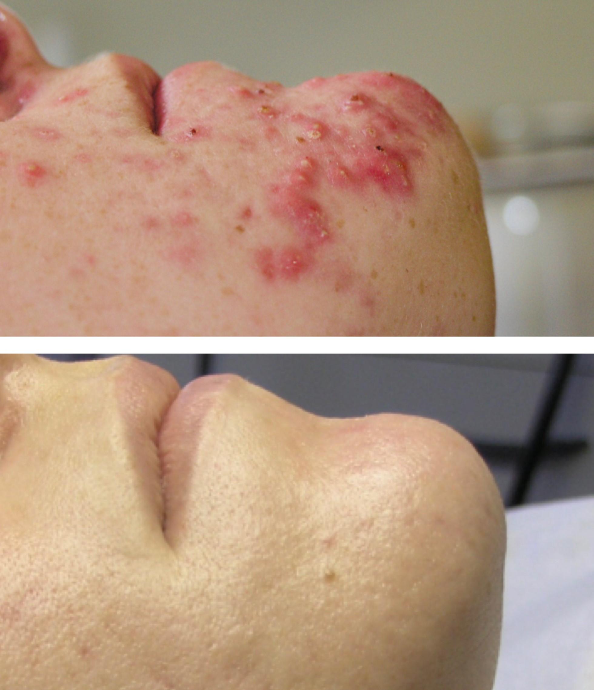 Ansigtsbehandling - Uren Hud